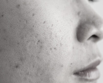 Closeup of a woman's cheek with skin spots
